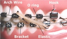 Orthodontic Terms